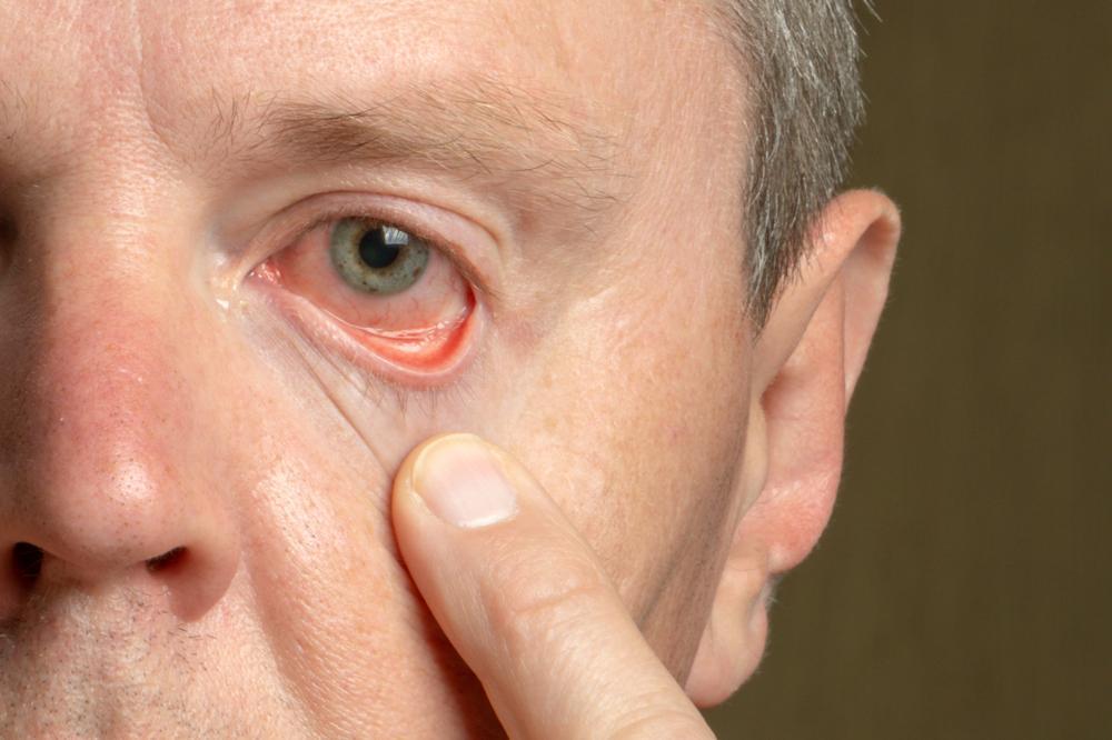 Pęknięte naczynko w oku: czego to objaw?